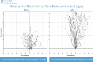 Stem cells chase cancer